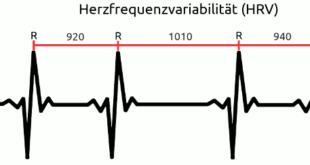 Herzfrequenzvariabilitaet (HRV) und RR-Intervalle (schematische Darstellnug)