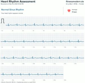 Fitbit Sense EKG-Aufzeichnung