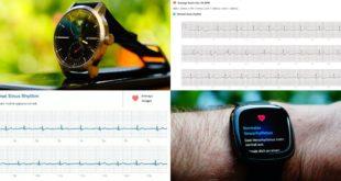 Fitnessuhren mit EKG