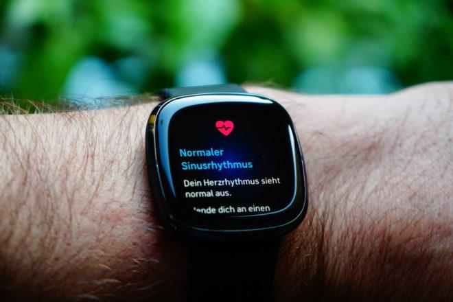 Fitbit Sense: EKG-Messung erfolgreich